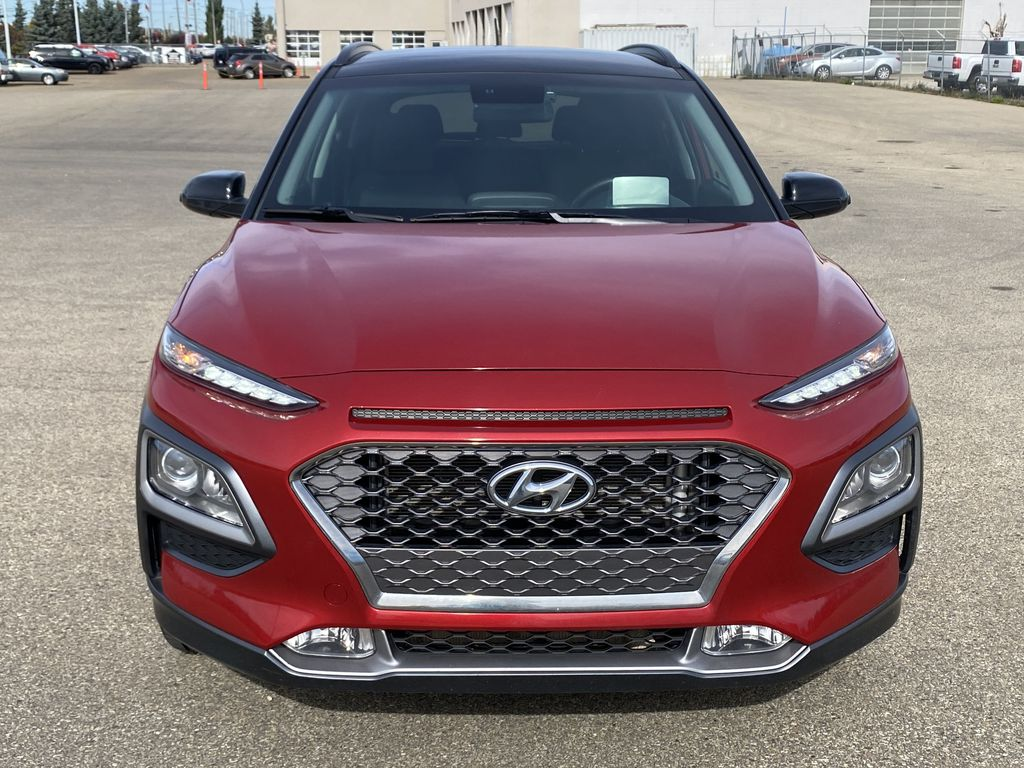 Red[Pulse Red w/Black Roof] 2018 Hyundai Kona Front Vehicle Photo in Edmonton AB